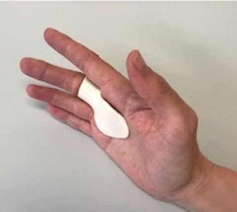 Trigger finger splint volar 1